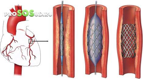 instabiele angina pectoris nhg