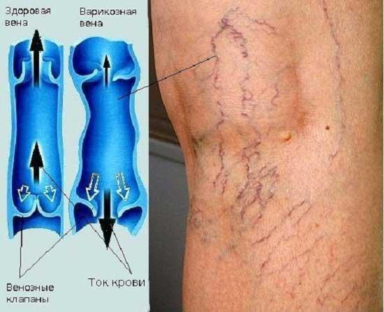 hirudoterapie leech venicose vene
